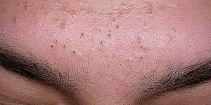 Чёрные точки на лице